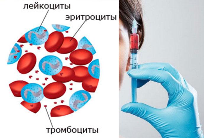 Тромбоциты, эритроциты, тромбоциты и уколы красоты