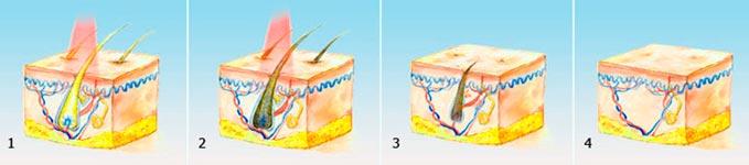Процедура термолиза
