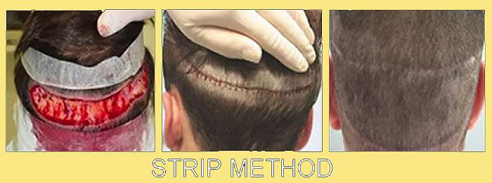STRIP-метод пересадки волос