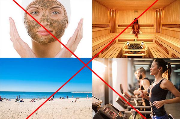 Запрещено загарать, сауна, активный спорт, применение скрабов