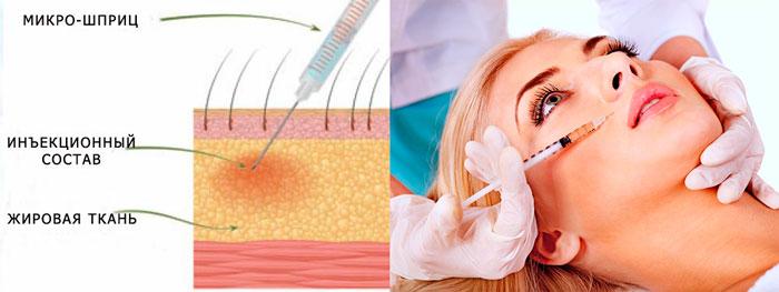 Схема инъекций мезотерапии