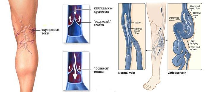 Виды и схемы кровотока варикозных вен