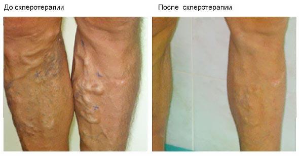 Результаты до и после склеротерапии