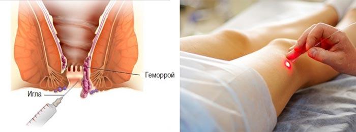 лазерная склеротерапии и геморойных узлов