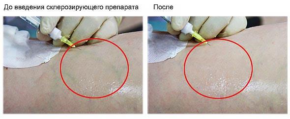 Эффект от склеротерапии до и после