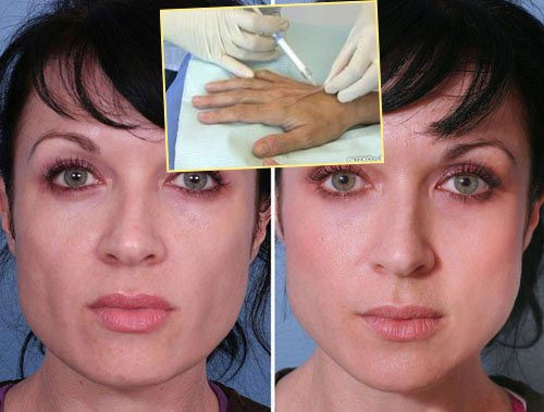 Корекция щек и кожи рук