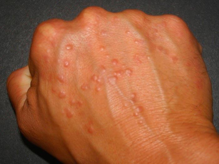 Прыщи от аллергии на руках