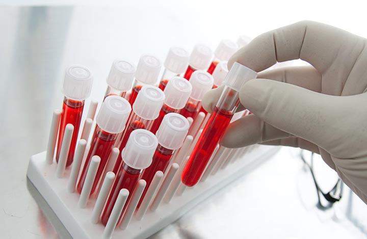 Анализ крови перед операцией по уменьшению желудка