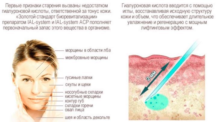 Процесс биоревитализации