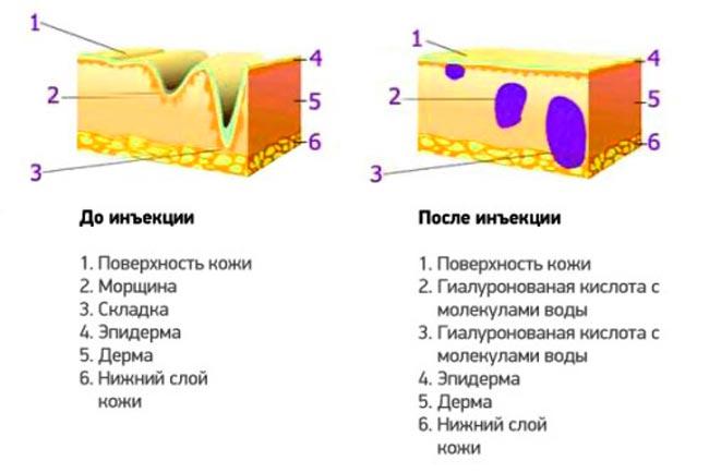 Действие гиалуроновой кислоты в составе Ювидерма 3