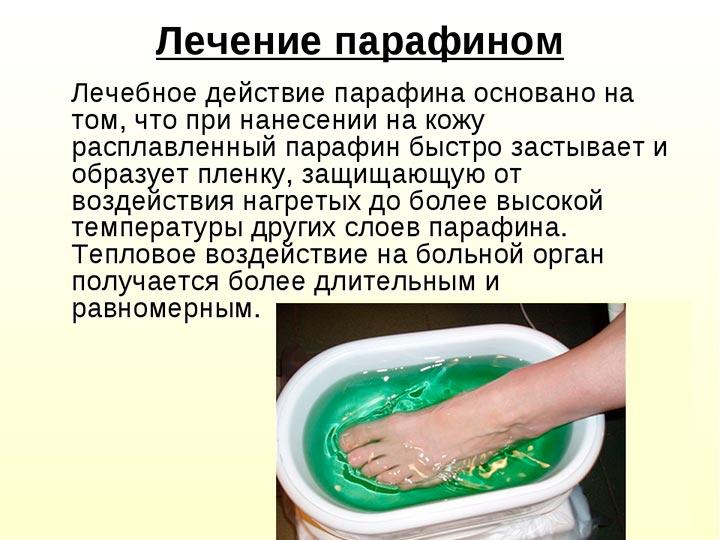 Лечение парафинотерапией