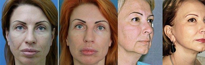 Миостимуляция лица - до и после