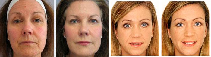Результаты плазмолифтинга, вид до и после