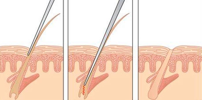 Процедура электролиза