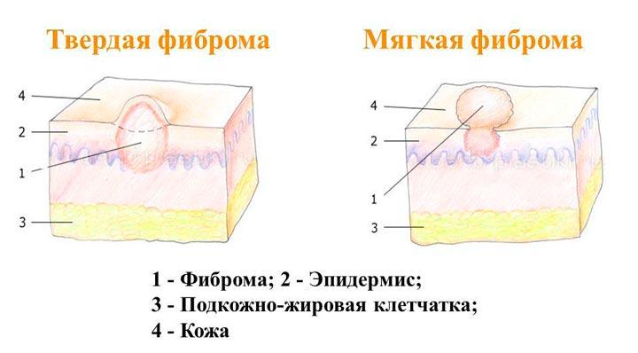 Схема фибромы