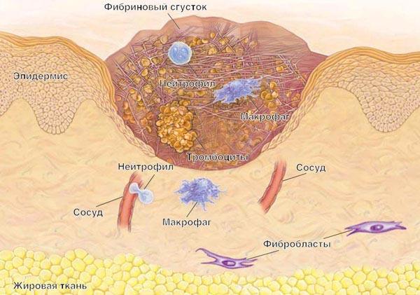 Формирование рубца на коже