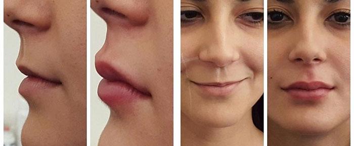 Плакстика неверного контура губ