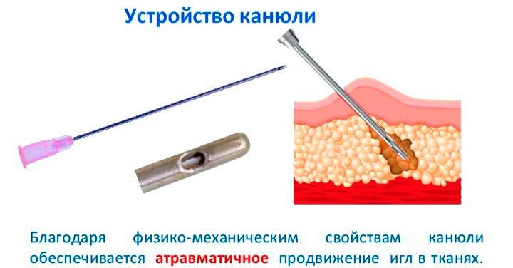 Конюля для ввода препаратов контурной пластики