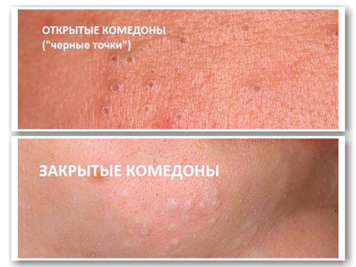 Комедоны на коже