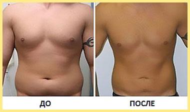 Торс до и после криолиполиза