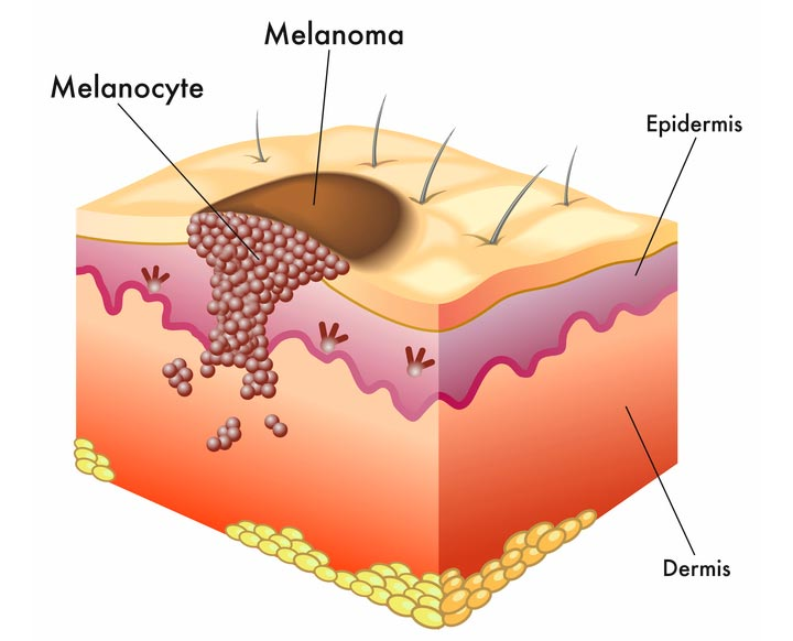 Схема меланомы