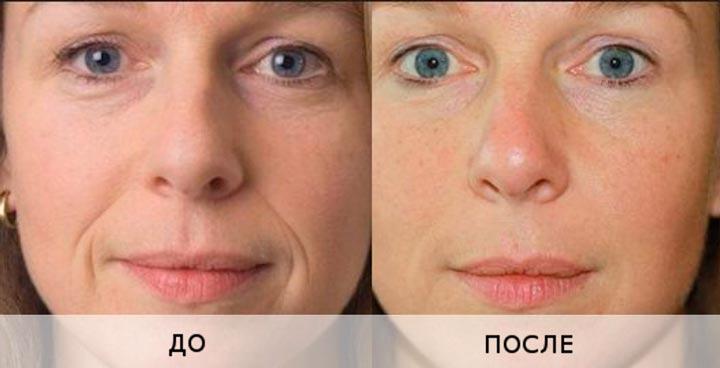 Результат применения Мезоксантина