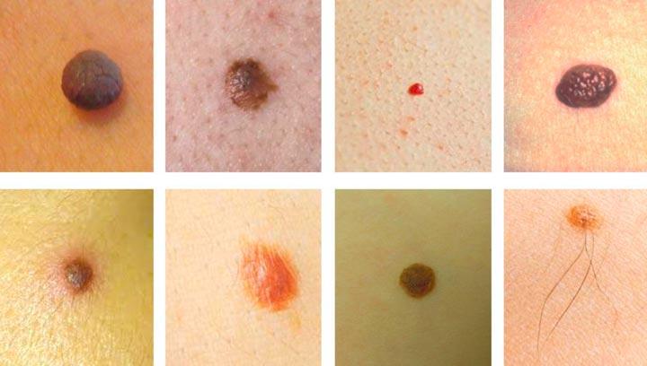 Различные новообразования на коже
