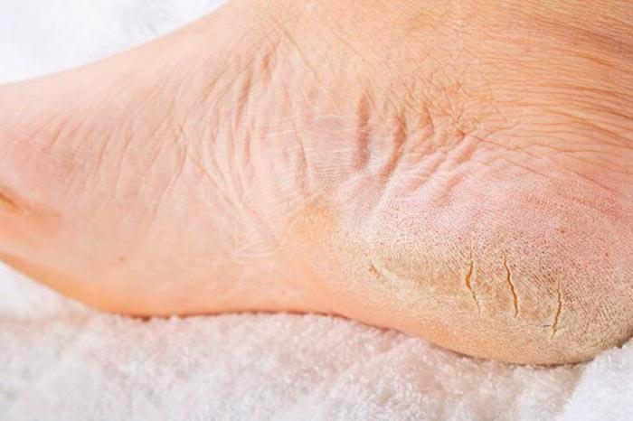 Загрубевшая и сухая кожа на ногах
