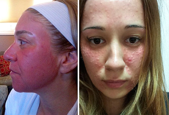 Сыпь и воспаление кожи после плазмолифтинга