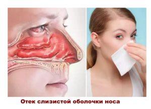 После септопластики отек носа