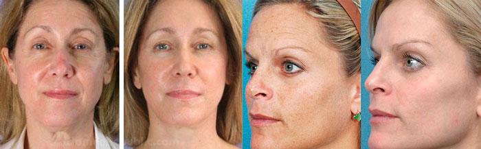 Эффект плазмолифтинга, вид лица до и после