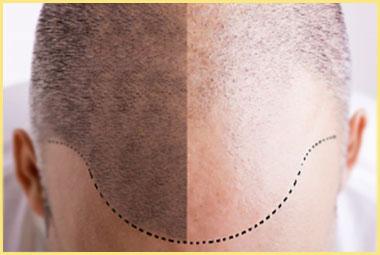 Результаты пересадки волос до и после