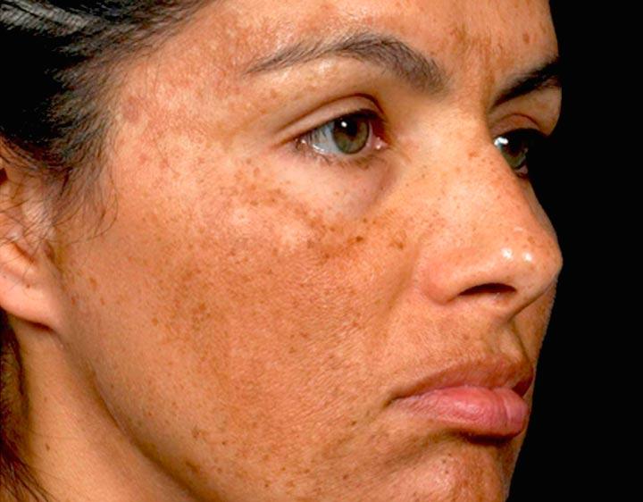 Повышенная пигментация кожи - показание к применению Мезоксантина