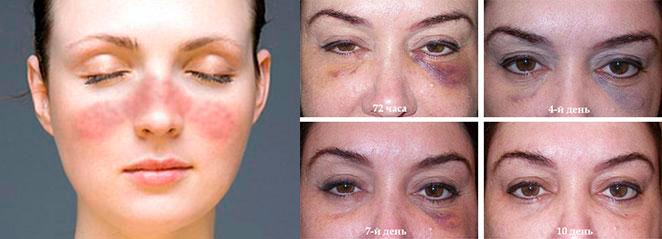 Лица с синяками под глазом, и покраснением кожи от инъекций