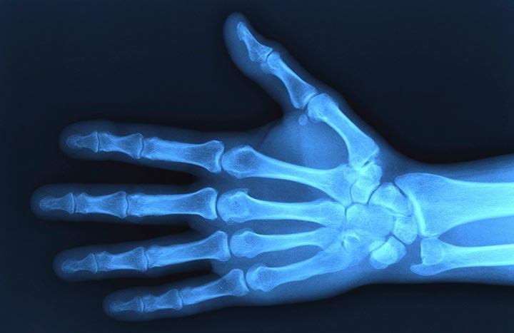 Рентгеновское облучение места образования