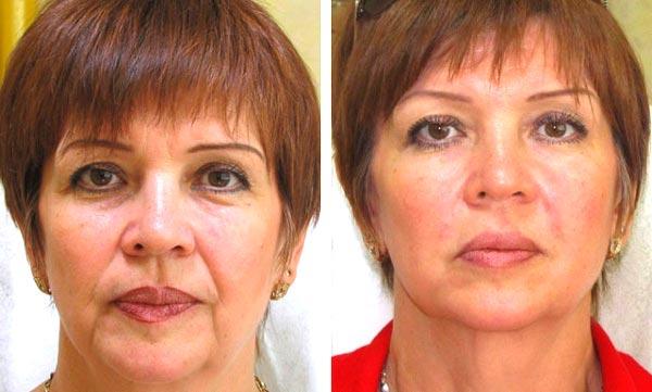 Результат после контурной пластики лица