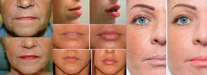 Морщинки на лице до и после мезотерапии