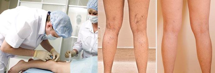 Склеротерапия и результаты до и после