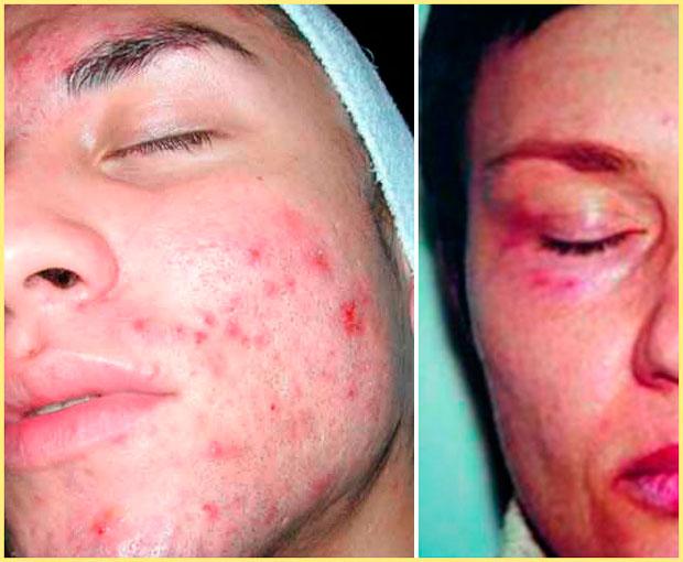Воспаления после мезотерапии