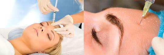 Мезотерапия на лбу и лице