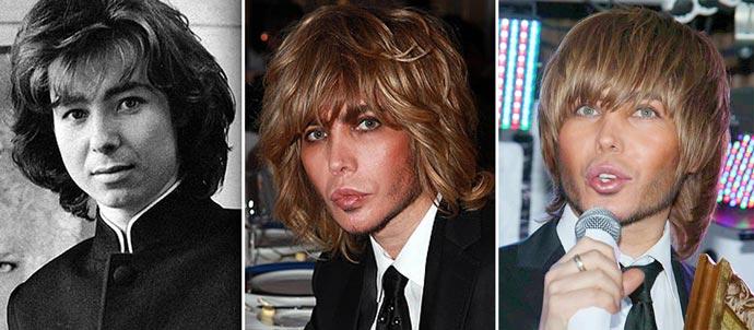Результаты пластики лица Сергея Зверева до и после