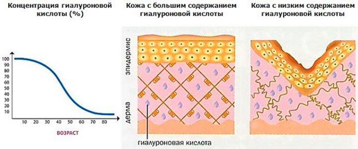Содержание в коже гиалуроновой кислоты