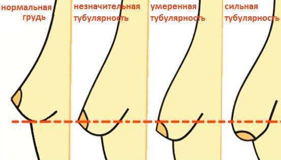 Степени тубулярной груди