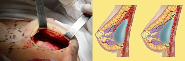 Мамопластика груди разрез для импланта