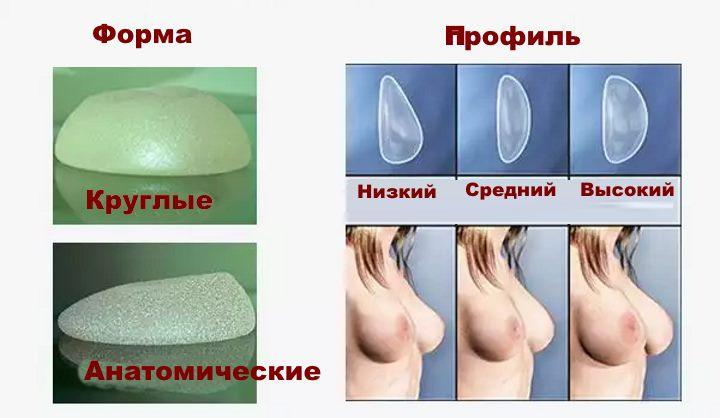 Импланты маммопластики