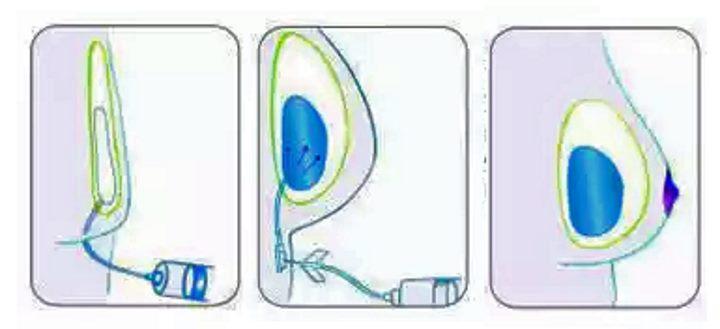 Физраствор вводится во время маммопластики