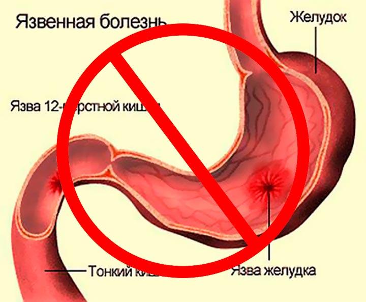 Нельзя проводить операцию по уменьшению желудка при заболеваниях желудка