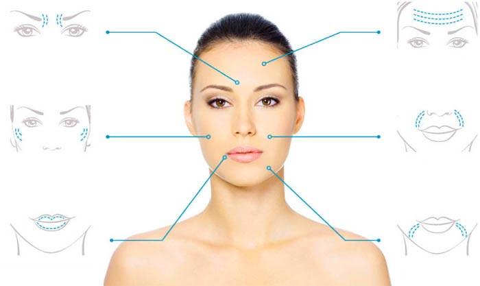Зоны для контурной пластики лица
