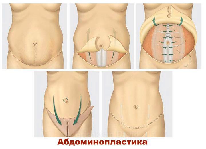 Абдоменопластика от растяжек