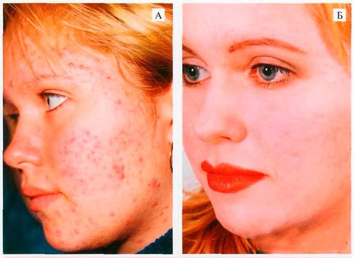 Эффективность аутогемотерапии в косметологии